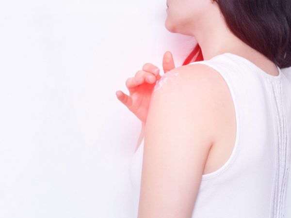 Girl smears a sore shoulder joint with anti-inflammatory ointment to relieve pain and inflammation, copy space, ankylosing spondylitis
