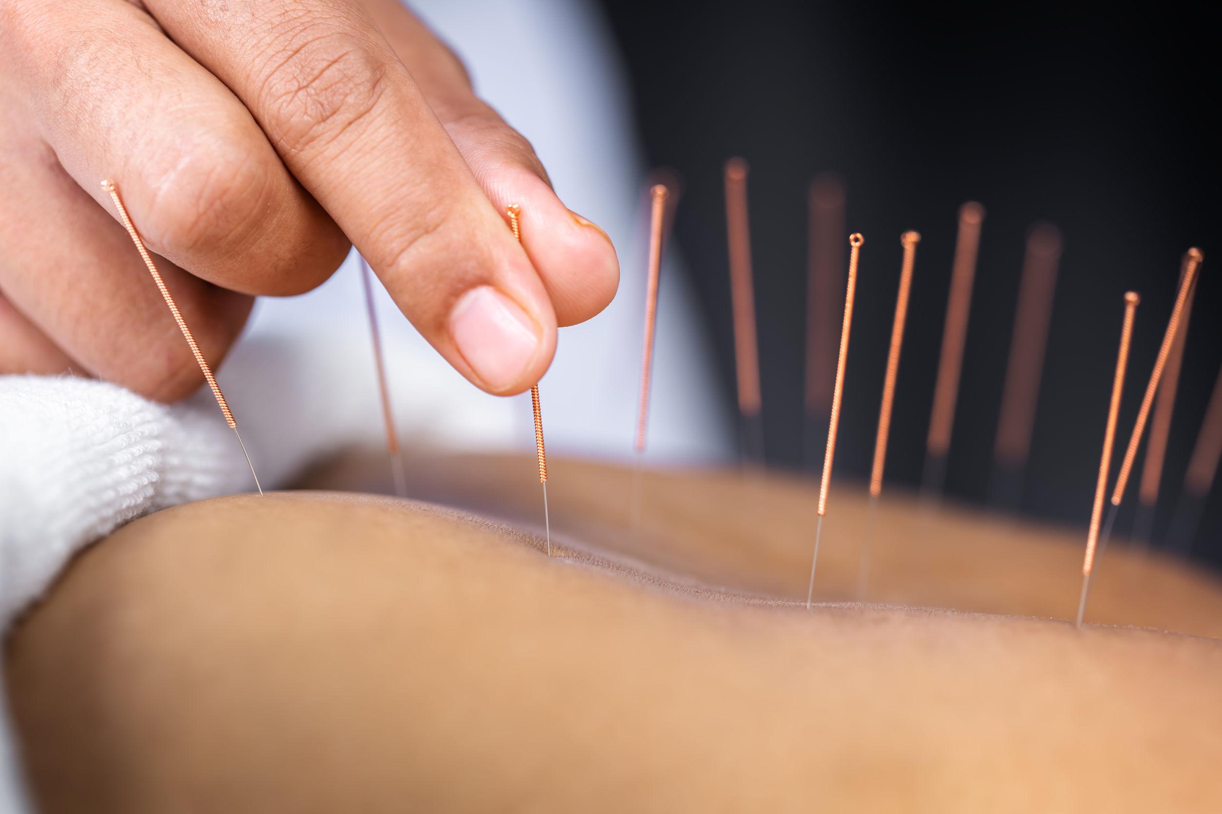 Akupunkturpflaster: Test & Empfehlungen (11/20)