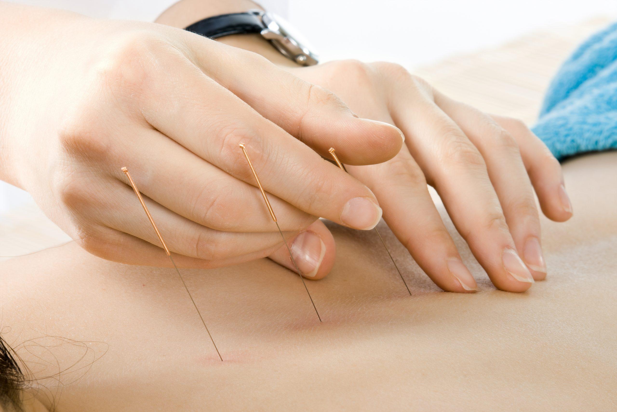 Akupunkturpflaster