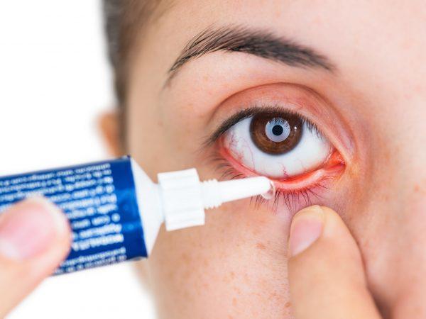 Augensalbe: Test & Empfehlungen (01/20)