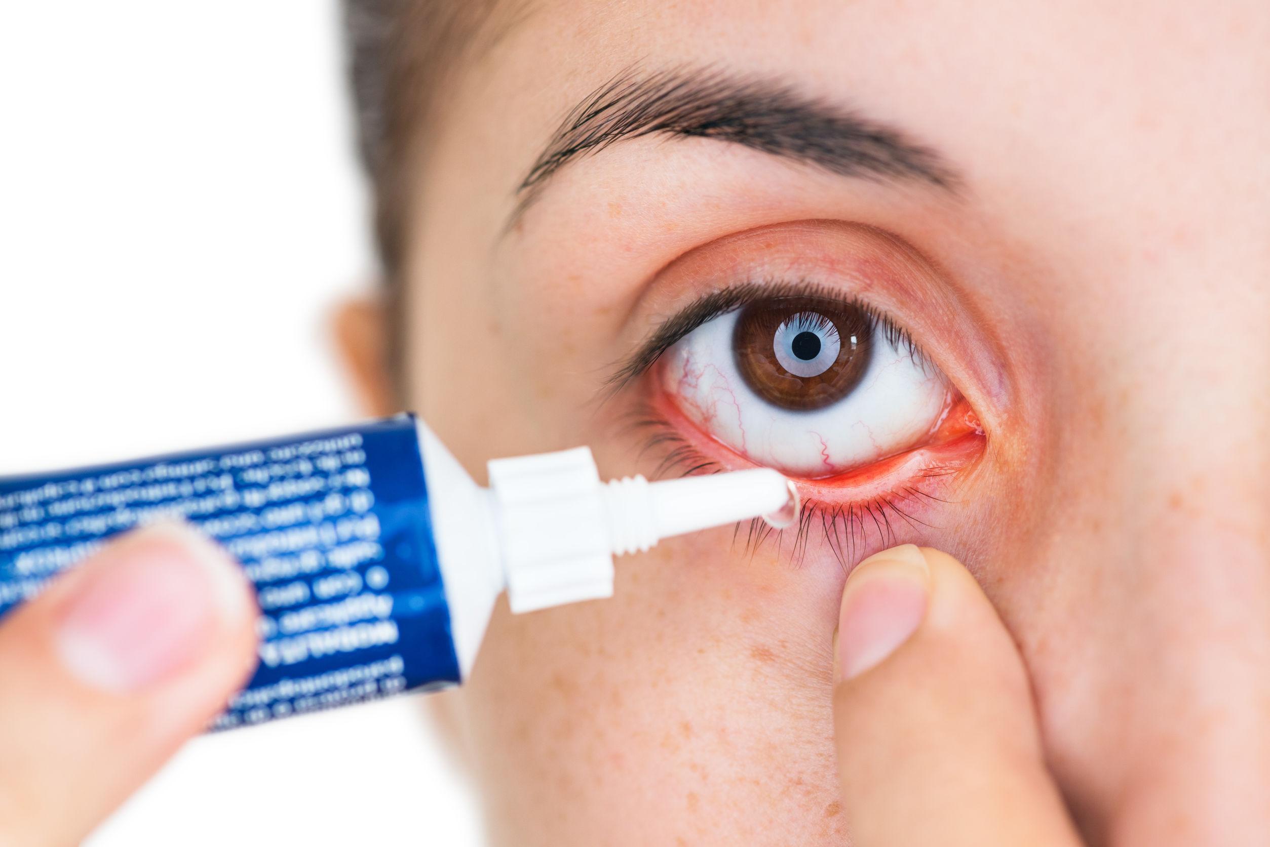 Augensalbe: Test & Empfehlungen (05/20)