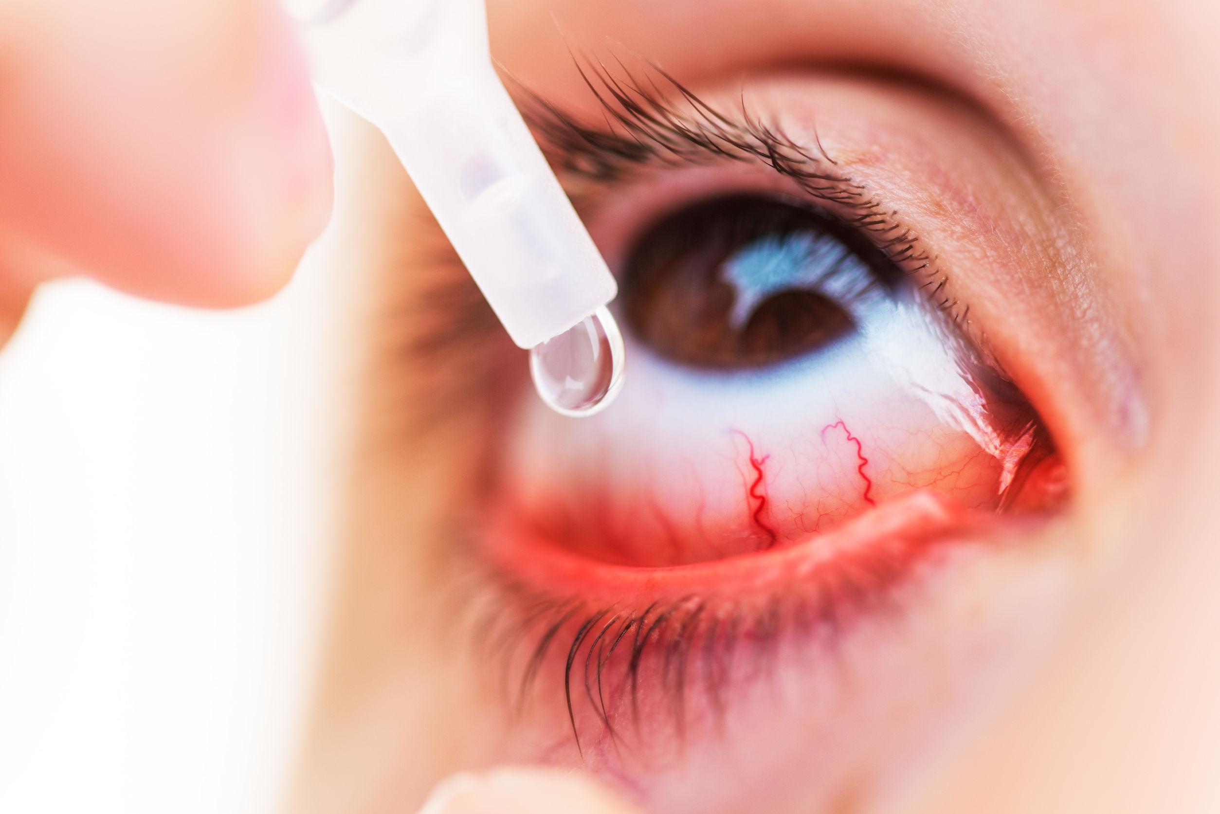 Augentropfen Bindehautentzündung