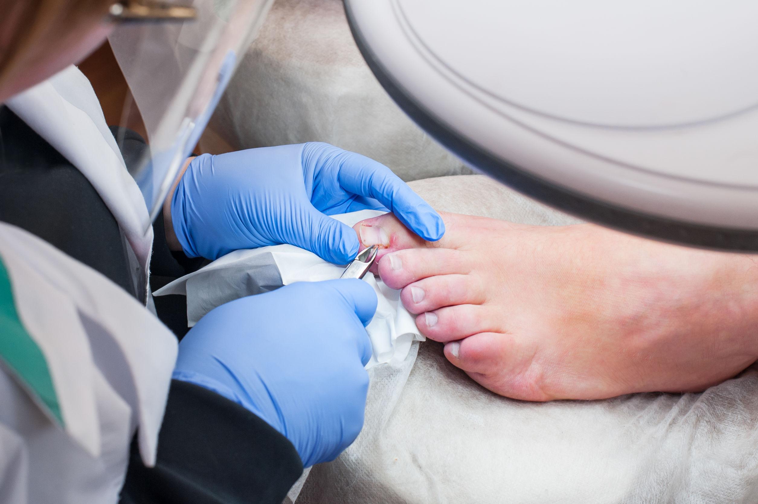nagelpilz-medikament-test