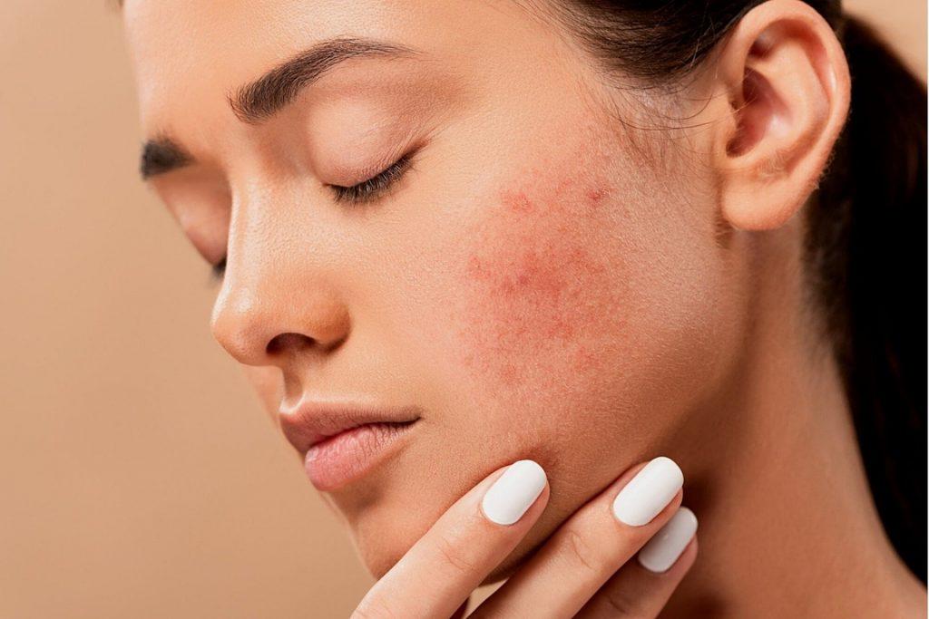 Creme gegen fettige Haut-1