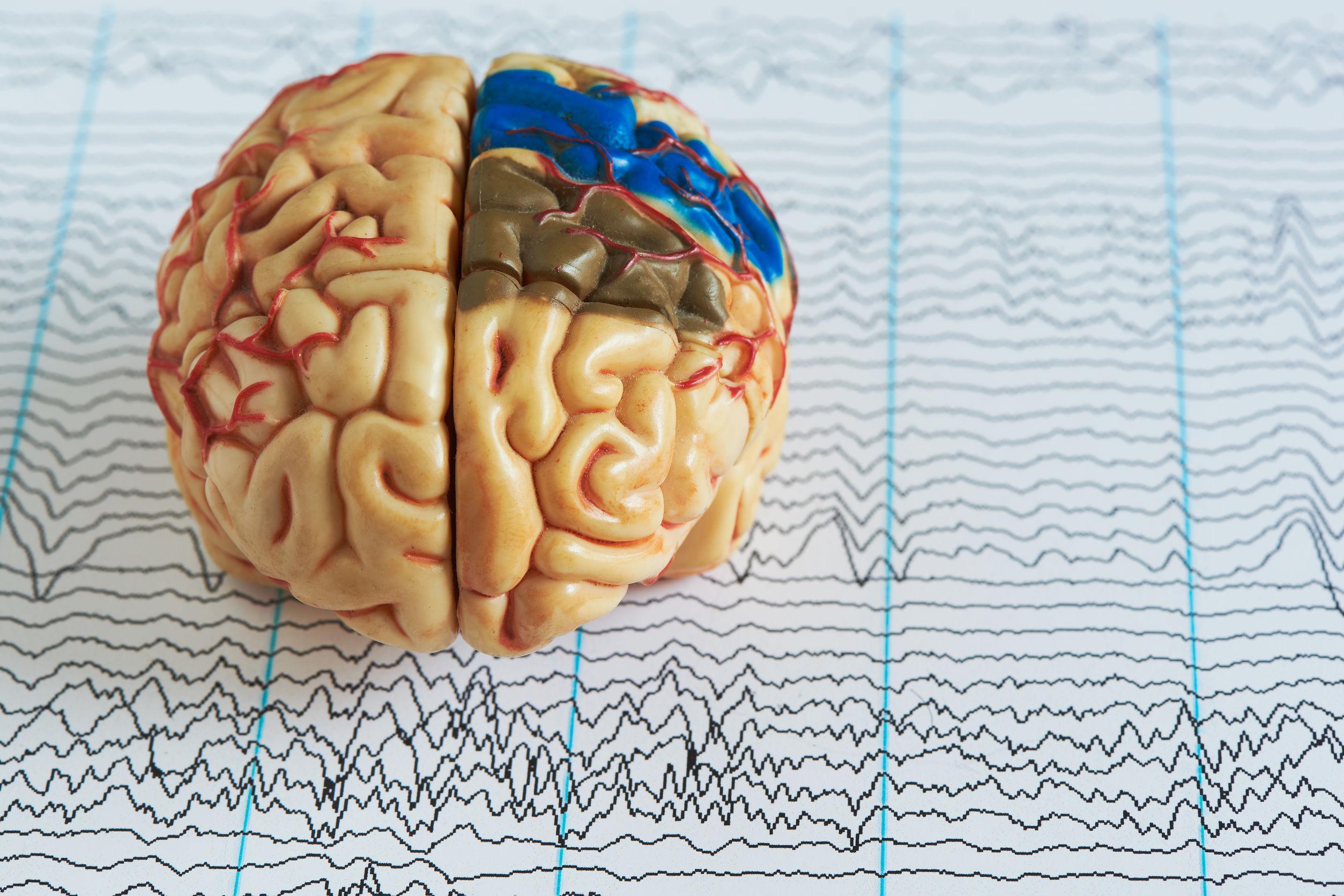 Epilepsie-Medikamente
