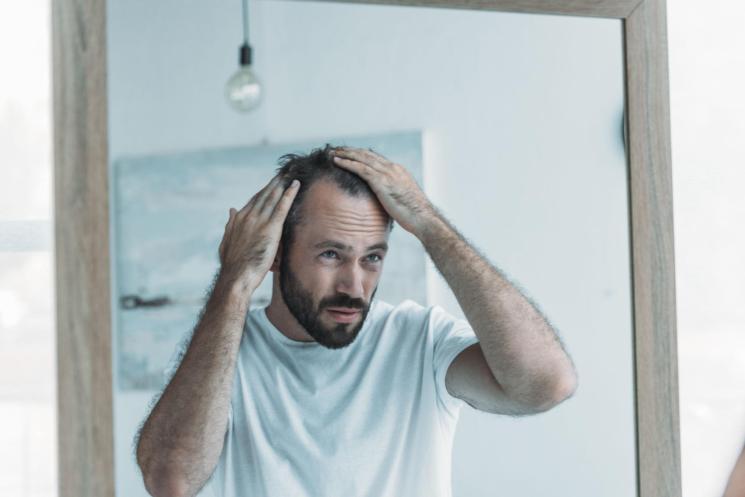Mittel gegen Haarausfall