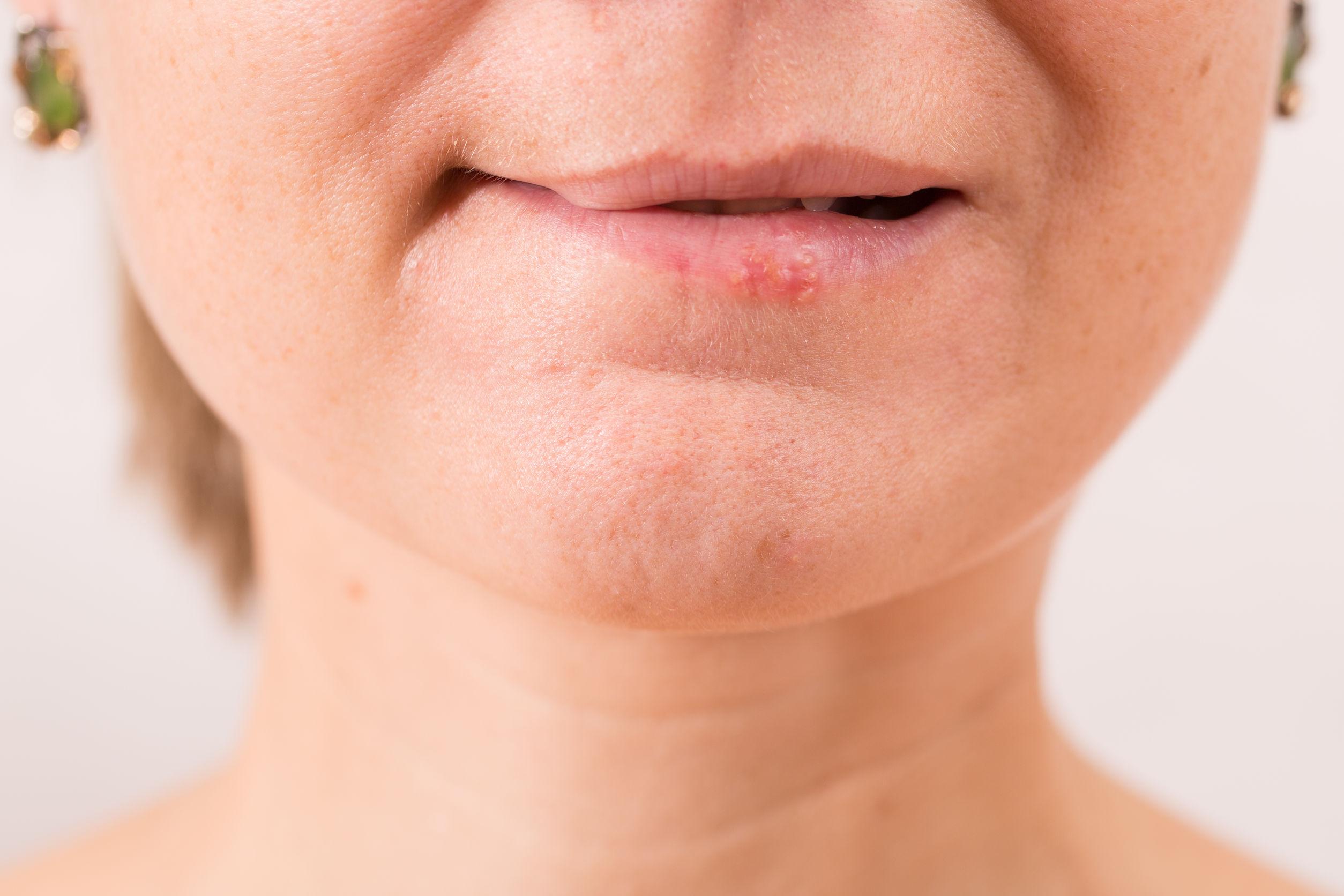 Genitalis sauna herpes ansteckung Herpes Genitalis